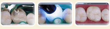 Ajustement, polissage ou glaçage de la restauration et cimentation de celle-ci
